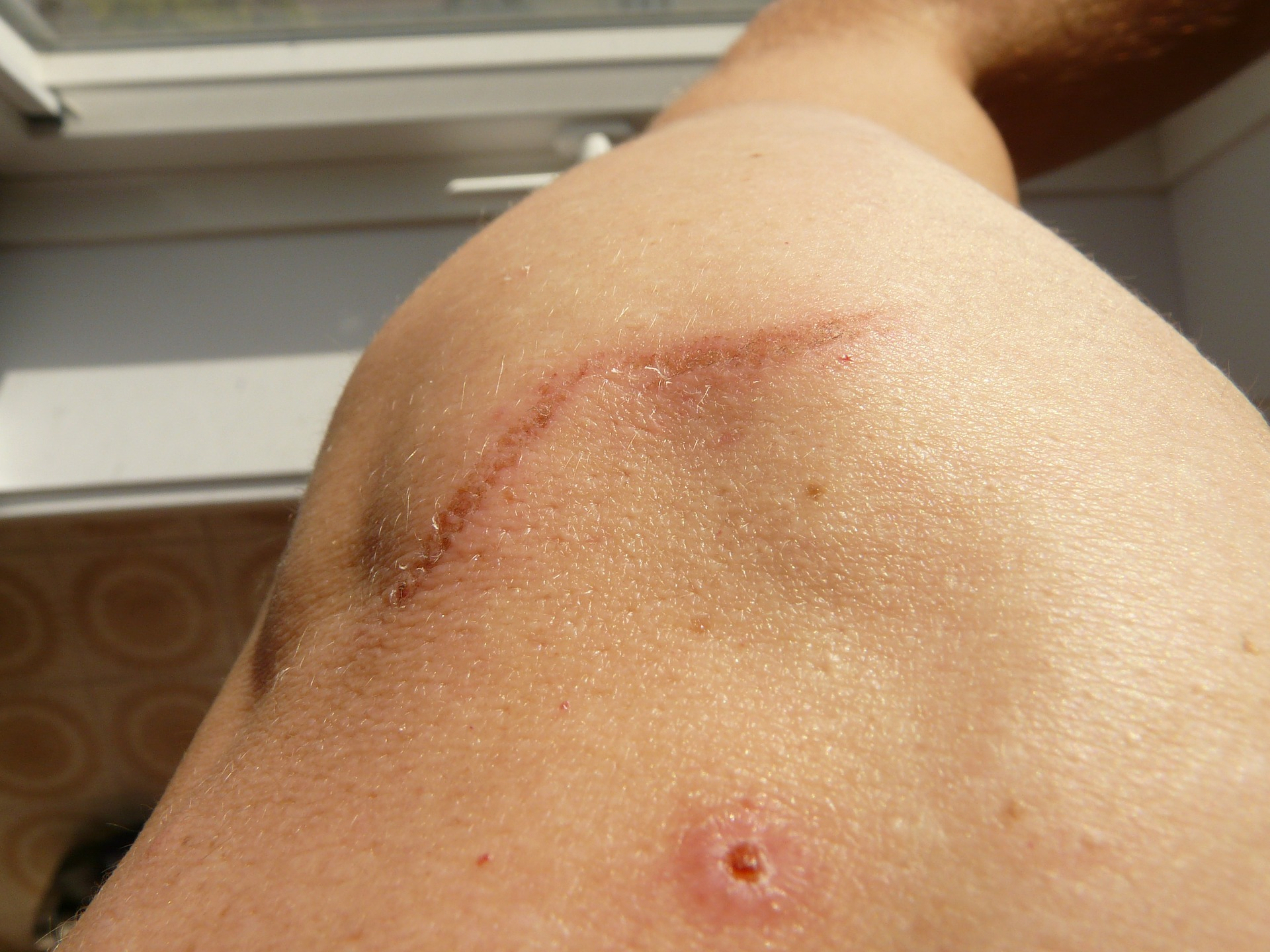 Scars may form when you get cosmetic surgery