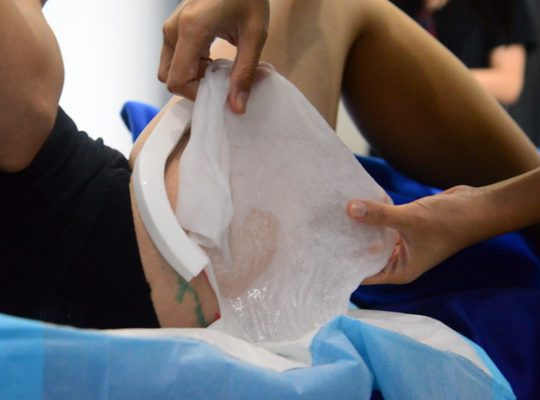 Freeze Fat With CoolSculpting UK