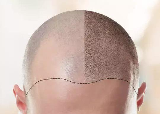 Process of Hair Transplantation